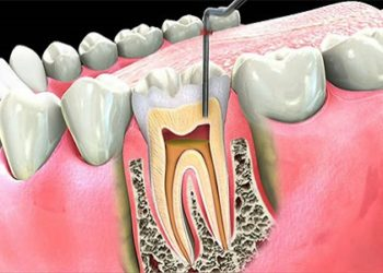 Root-Canal-Therapy-Guntersville-AL