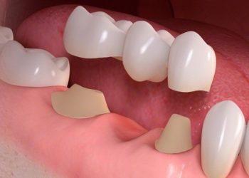 dental_bridge_sm